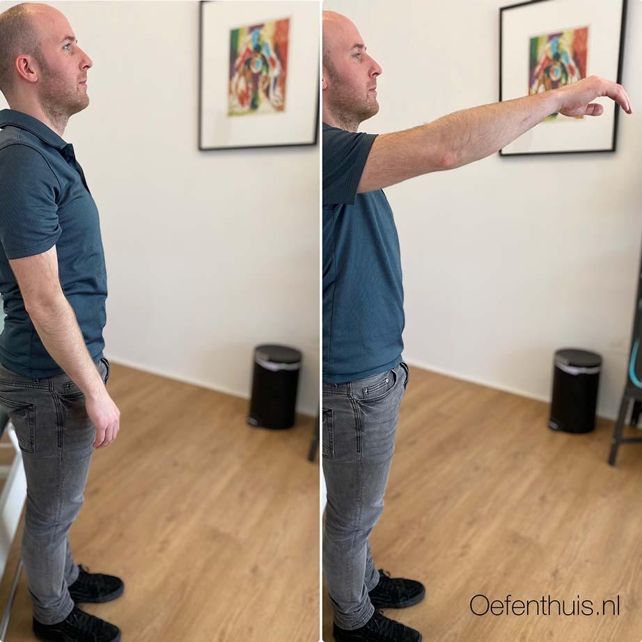 schouderluxatie arm heffen in stand oefening