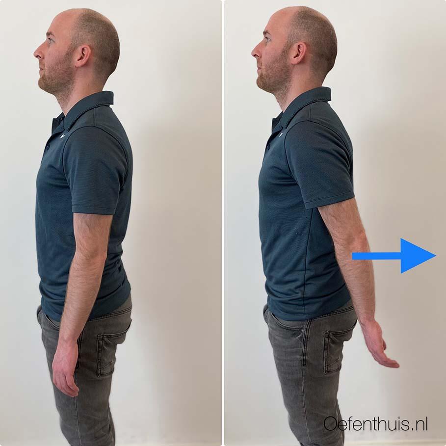 schouderluxatie retroflexie oefening